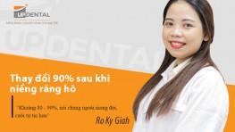 Thay đổi 90% sau khi niềng răng hô - Review của Ro Ky Giah
