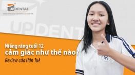 Niềng răng tuổi 12 cảm giác như thế nào?- Review của Hân Tuệ