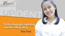 Tự tin chụp góc nghiêng sau khi niềng răng - Review niềng răng Thảo Trinh