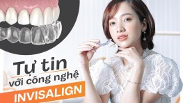 Niềng răng Invisalign - phương pháp niềng cải tiến hàng đầu của Mỹ