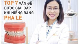 Giải đáp niềng răng mắc cài pha lê có thể bạn chưa biết