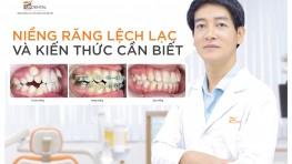 Niềng răng lệch lạc hiệu quả tiết kiệm chi phí ở Up Dental
