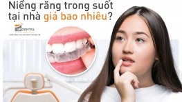 Niềng răng trong suốt giá bao nhiêu tiền?