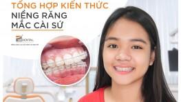 Niềng răng mắc cài sứ giá bao nhiêu [năm 2021]