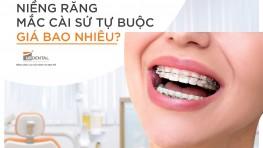 Niềng răng mắc cài sứ tự buộc giá bao nhiêu?
