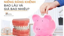 Quy trình niềng răng khểnh an toàn hiệu quả chuẩn Y khoa