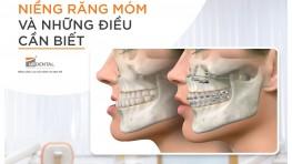 Niềng răng móm: Những vấn đề quan trọng bạn nhất định phải biết trước khi đi niềng