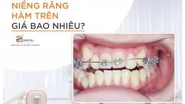 Thắc mắc: Niềng răng hàm trên giá bao nhiêu? Đọc ngay để biết