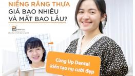 Niềng răng thưa mất bao lâu? Kinh nghiệm niềng răng thưa