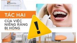 Tác hại của việc niềng răng bị hỏng