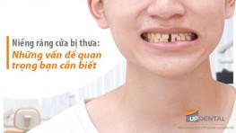 Niềng răng cửa bị thưa và các vấn đề bạn cần quan tâm