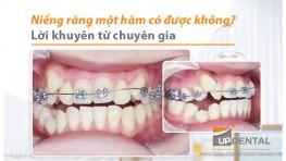 Niềng răng một hàm có được không? Lời khuyên từ chuyên gia