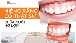 Niềng răng chữa cười hở lợi? Có phải sự thật không?