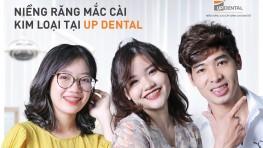 Giá niềng răng mắc cài kim loại mới nhất [2021] hiện nay