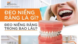Đeo niềng răng là gì? Đeo niềng răng trong bao lâu?