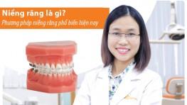 Niềng răng là gì? các phương pháp niềng răng phổ biến hiện nay