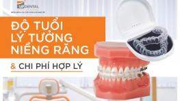 Khi nào cần niềng răng, độ tuổi lý tưởng và chi phí
