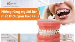 Niềng răng người lớn mất thời gian bao lâu?