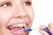 Những lưu ý sau khi niềng răng mà khách hàng không thể bỏ qua