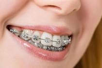 Những điều trước niềng răng khách hàng nên lưu ý