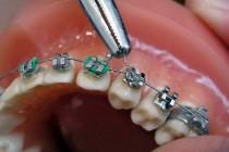 Niềng răng hô hàm trên có hiệu quả không?