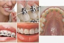 Niềng răng cố định và những thông tin bạn nên biết