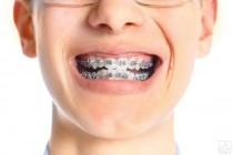 Các loại niềng răng tốt nhất hiện nay