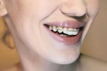 Trước và sau niềng răng bạn nên lưu ý những điều gì?