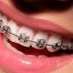 Niềng răng một hàm có hiệu quả không?