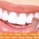 Vị trí các răng trên cung hàm - Có nên nhổ răng khôn không?
