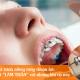 """Tổng hợp những khí cụ khi niềng răng bạn buộc phải """"kết bạn"""""""