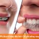 Chi phí niềng răng đắt không? - 99.9% khách hàng quan tâm