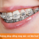 Bật mí lý do Phương pháp niềng răng mắc cài kim loại luôn được chọn!