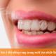 """Niềng răng trong suốt: Một số lưu ý bạn nhất định phải """"bỏ túi"""""""