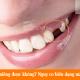 Mất răng có niềng được không? Nguy cơ biến dạng mặt do mất răng