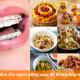 Thực đơn cho người niềng răng để không hóp má hay tăng cân