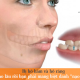 Giải đáp thắc mắc: Hô hàm và hô răng phải làm sao?