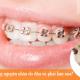 Nhổ răng bị sưng nguyên nhân do đâu và phải làm sao?