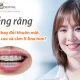 Niềng răng có làm thay đổi khuôn mặt?