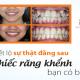 Răng khểnh đẹp hay xấu? Có nên niềng răng khểnh không?