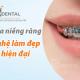 Chỉnh nha niềng răng - Ưu và hạn chế của niềng răng mắc cài kim loại