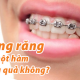 Giá cả niềng răng 1 hàm thế nào? Niềng răng 1 hàm có hiệu quả không?