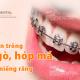 Niềng răng cửa mất bao lâu - Những khuyết điểm về răng cửa thường gặp
