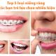 Top 5 phương pháp niềng răng lựa chọn nhiều nhất