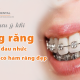 Những lưu ý khi niềng răng để không đau nhức và nhanh có hàm răng đẹp