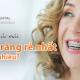 Niềng răng rẻ nhất bao nhiêu tiền?