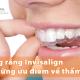 Niềng răng Invisalign là gì và những ưu điểm vốn có