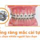 Niềng răng mắc cài tự buộc - Sự lựa chọn tối ưu bạn đã biết?