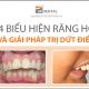 Giải đáp thắc mắc về chi phí và thời gian chữa răng hô hết vĩnh viễn